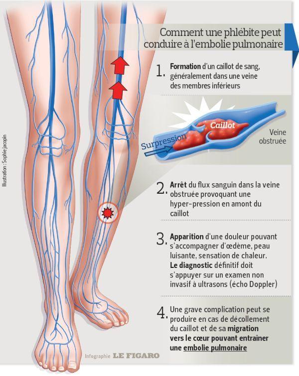 Symptome Embolie